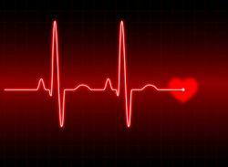 Функции тонометров OMRON: Индикатор аритмии